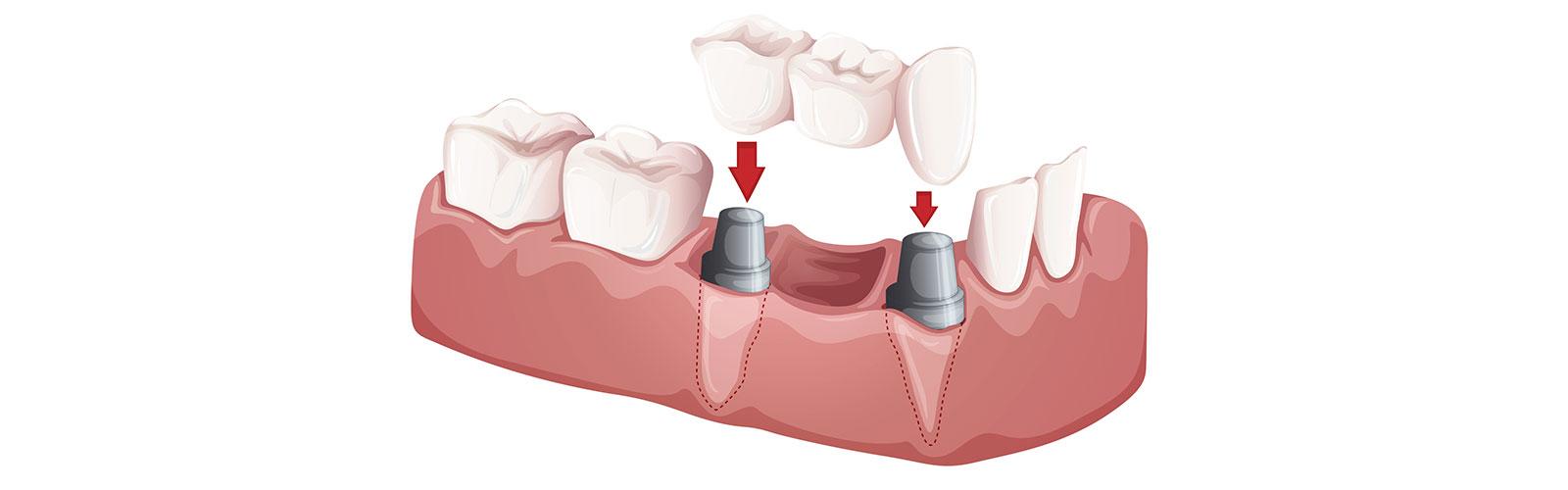 Illustration of dental bridges, A service offer at Bella Hanono Family Dentistry