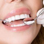 Cosmetic Dentist at Bella Hanono Family Dentistry in Alpharetta, GA Area