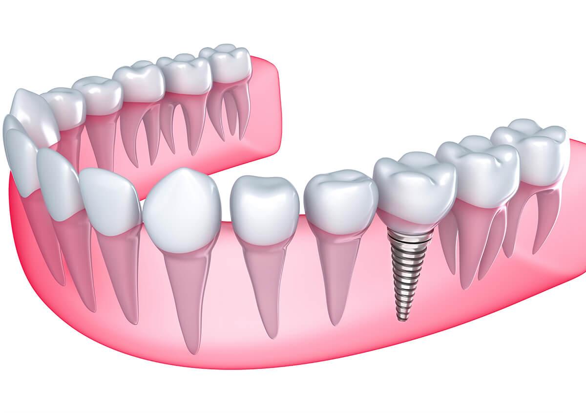 Replace Missing Teeth in Alpharetta GA Area