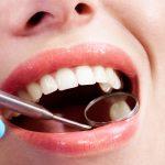 Cosmetic Teeth Bonding for Teeth Gaps, Alpharetta Georgia