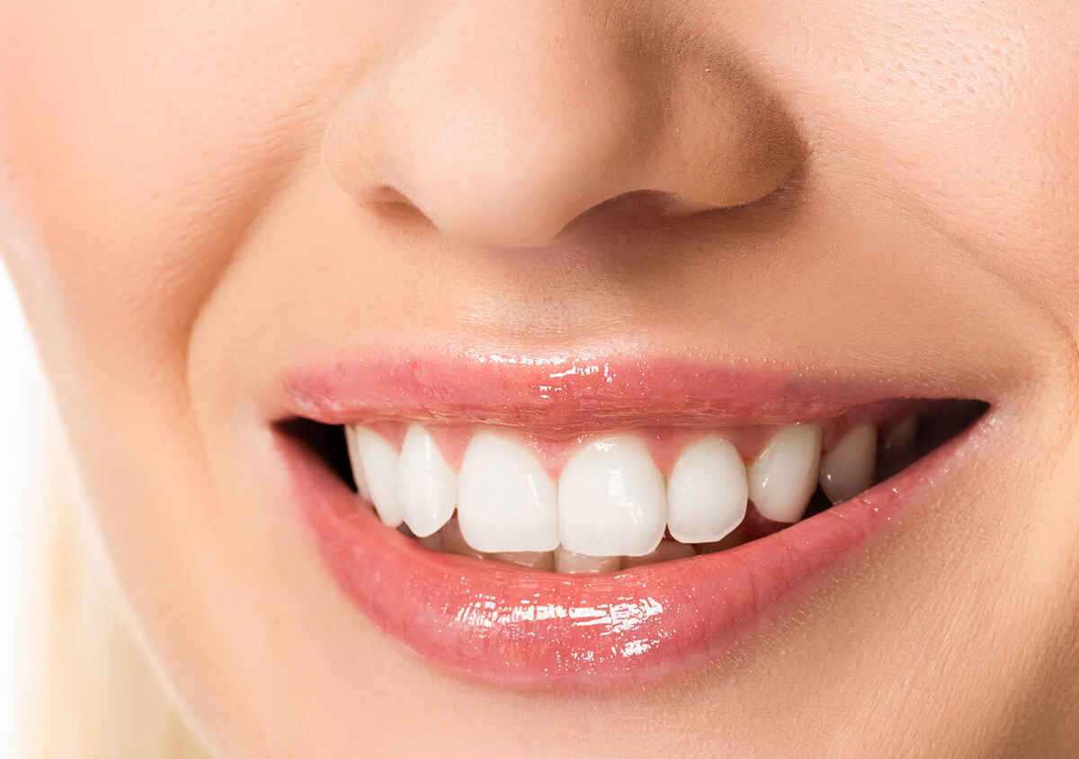 Dental Veneers are the perfect fix for flawed teeth